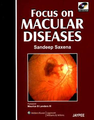 Focus on Macular Diseases written by Saxena, Sandeep