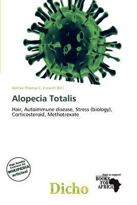 Alopecia Totalis written by Delmar Thomas C. Stawart